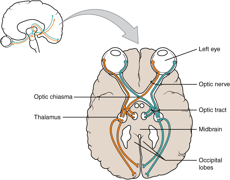 This illustration shows a superior view of a cross section of the brain. The anterior side of the brain is at the top of the diagram with the two eyes clearly visible. Each eye contains a left nerve tract and a right nerve tract. In the left eye, the left nerve tract travels straight back to the right side of the thalamus. It then enters the left occipital lobe. Conversely, the right nerve tract crosses to the right side of the brain through the optic chiasma. It travels through the right side of the thalamus and enters the right occipital lobe. In the right eye, the opposite is true. The left nerve tract crosses over to the left side of the brain at the optic chiasma, traveling into the left side of the thalamus and the left side of the occipital lobe. However, the right nerve tract leads straight back to the right side of the thalamus and the right occipital lobe. Therefore, the optic chiasma is where the right nerve tract from the right eye crosses over the left nerve tract from the left eye.