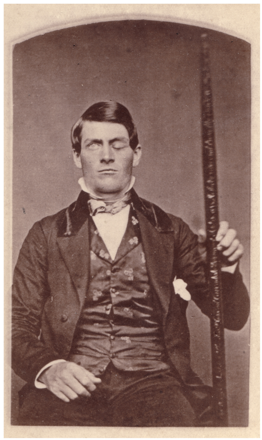 This photo shows Phineas Gage holding the metal spike that impaled his prefrontal cortex.