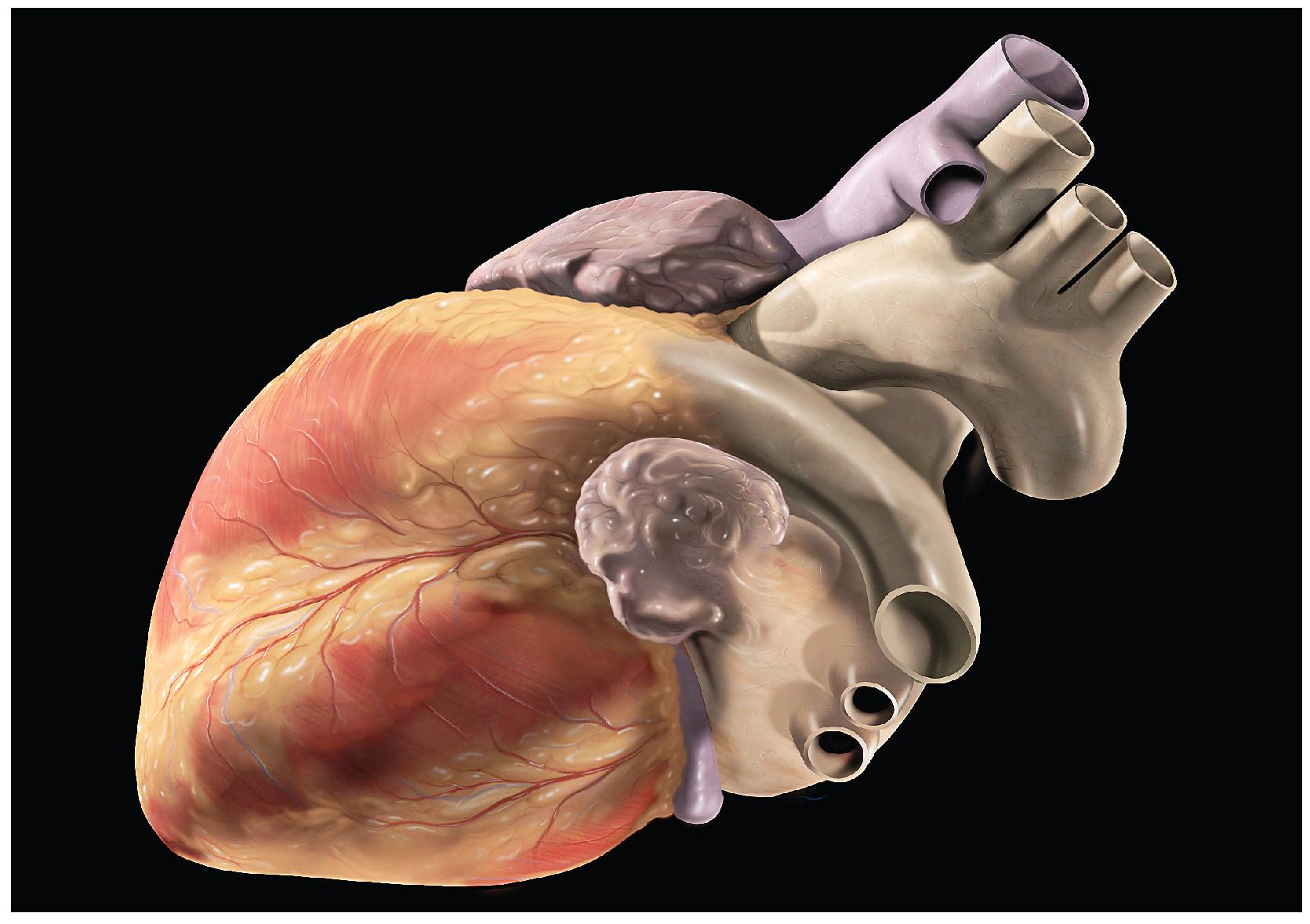 This photo shows a human heart.