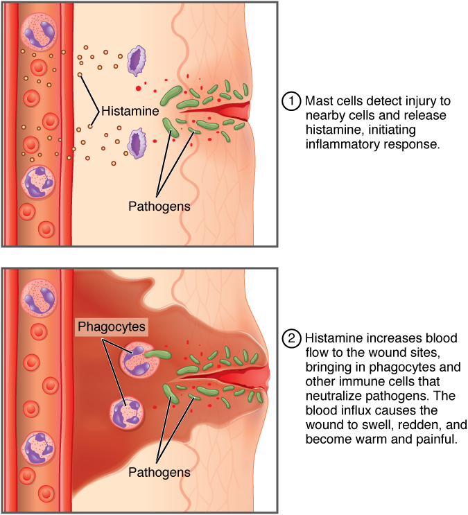 The top panel of this figure shows the mast cells detecting an injury and initiating an inflammatory response. The bottom panel shows the increase in blood flow in response to histamine.