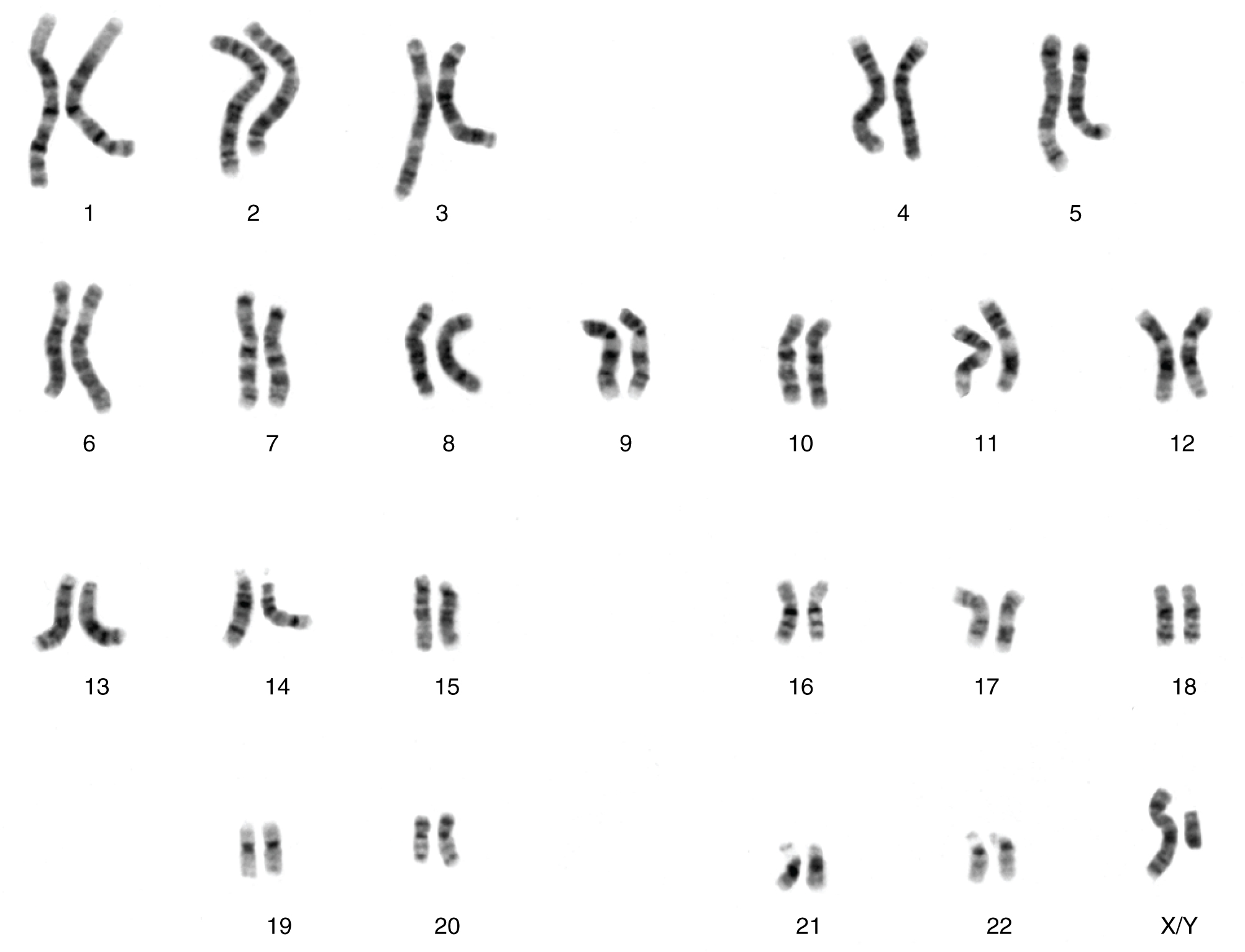 This figure show the 23 pairs of chromosomes in a male human being.