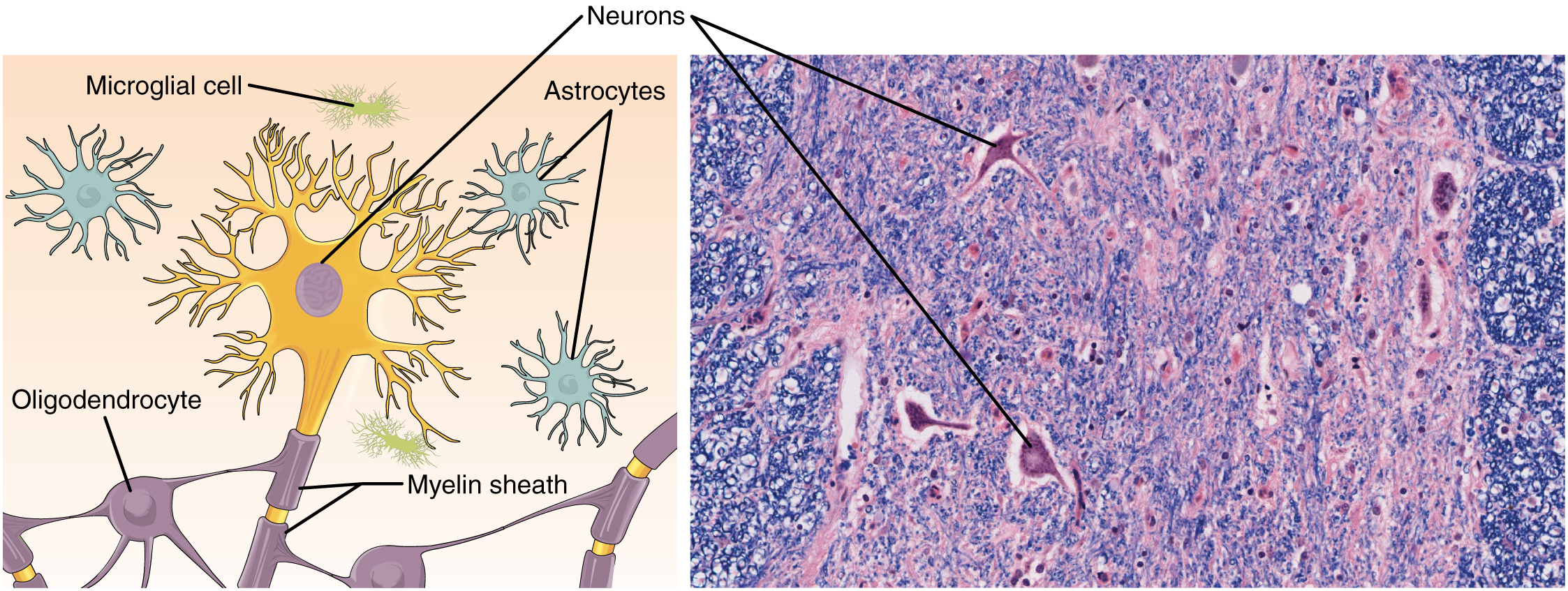 Part A of this diagram shows various types of nerve cells. The largest cell is a neuron. The central body of the neuron contains a single nucleus. Six sets of dendrites project from the top, left and right, edges of the neuron. The dendrites are yellow and branch many times after leaving the cell, taking on the appearance of tiny trees. The axon projects from the bottom edge of the cell and is covered with purple sheaths labeled the myelin sheath. The sheath is not continuous, but instead is a series of equally spaced segments along the axon. Another cell, called an oligodendrocyte, is spider like in appearance, with its leg-like projections each connecting to a segment of the neuron's myelin sheath. Above the neuron are three astrocytes. They are much smaller than the neuron and have no axons, and are also irregularly shaped cells with many dendrites projecting from the central body. Finally, a microglial cell is shown above the neuron. It is the smallest of the cells in this figure and is an elongated cell with many fine, tentacle-like projections. The projections are concentrated at the two ends of the cell, with the middle area lacking any projections. The micrograph of the neural tissue shows that this tissue is very heterogenous, with both large and small cells embedded in the matrix. Much of the space between the cells is occupied by threadlike nerve fibers.