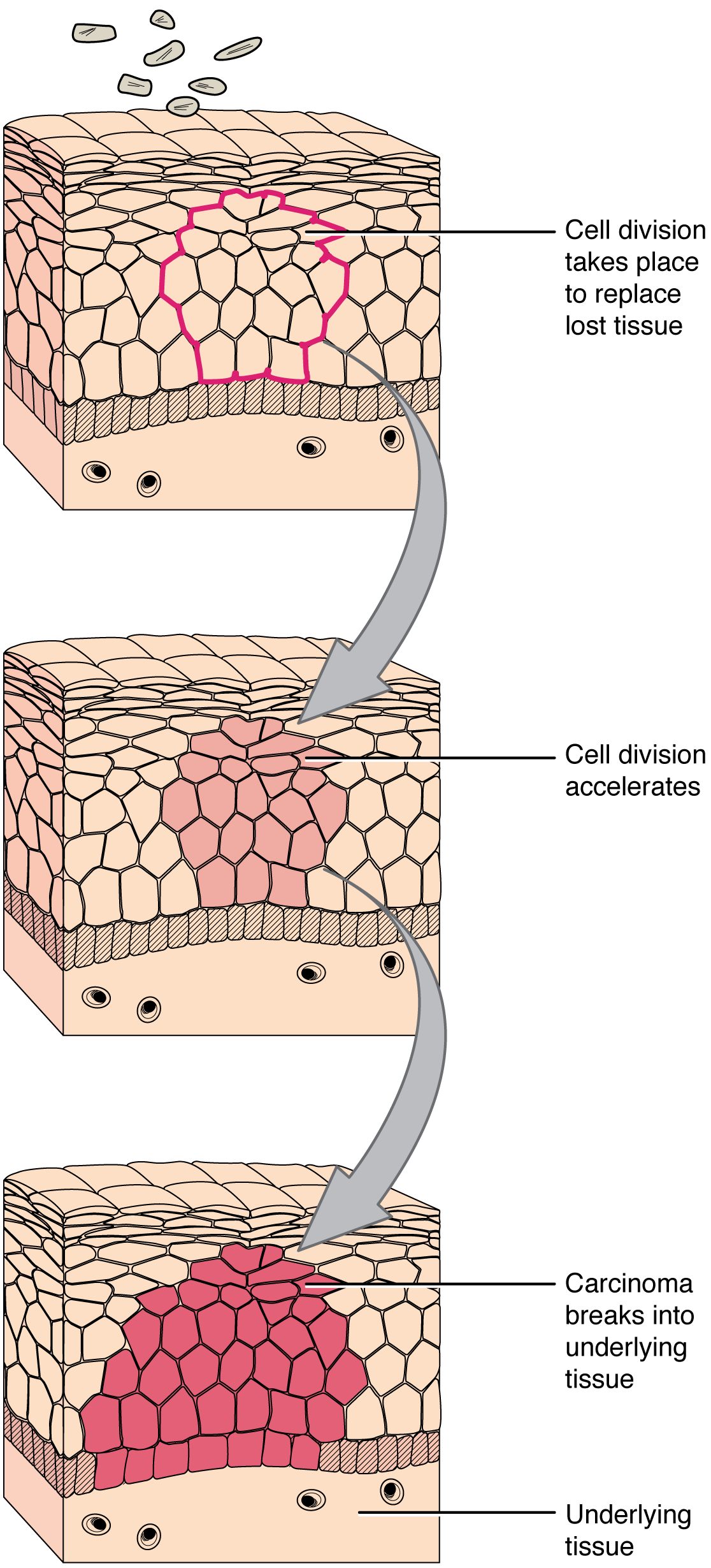 This series of three diagrams shows the development of cancer in epithelial cells. In all three diagrams, layers of epithelial tissue cover a generic underlying tissue. In the first diagram, an injury kills a section of the epithelial cells. In the second image, new epithelial cells have completely filled in the wounded area. However, cell division is still accelerating. In the lowest diagram, the epithelial cells have continued to divide and have now expanded beyond the original wound area. The group of dividing cells, now called a carcinoma, breaks into the layer of underlying tissue.
