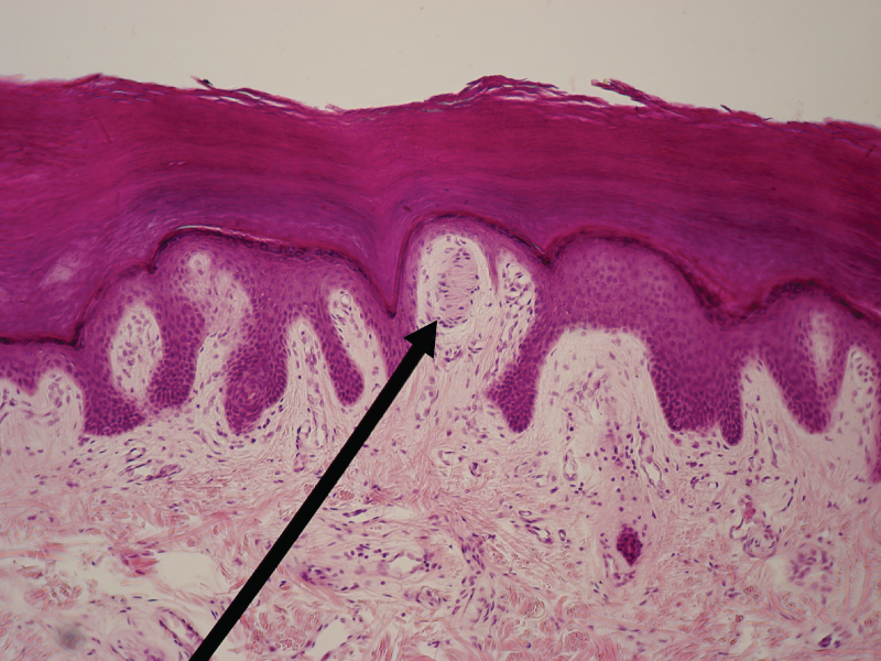 This micrograph shows a skin cross section at low magnification. The Meissner's corpuscle is a large, oval-shaped structure located in the papillary layer of the dermis, under the lowest deepest layer of the epidermis. The corpuscle contains a dark staining oval within the outer, light staining oval. Several horizontal bars are arranged vertically within the inner oval. Also, several cells with dark purple nuclei can be seen scattered throughout the corpuscle.