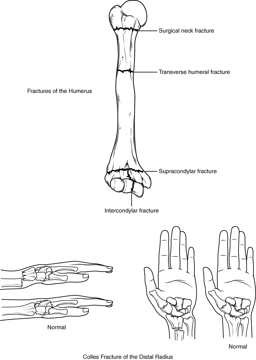 The top panel of this figure shows the different types of fracture in the humerus, and the bottom panel shows the different types of fracture in the radius.