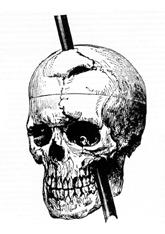 The image on the right shows a drawing of the skull with the metal spike inserted like it would have been when he was injured.