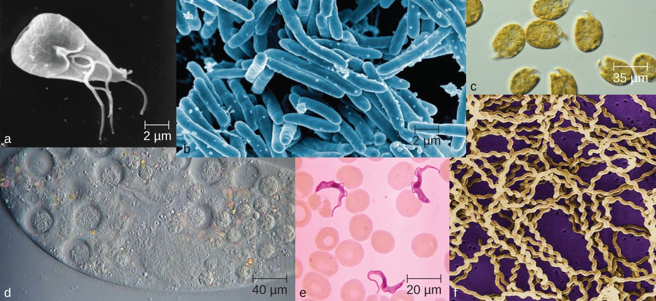 Microorganisms vary visually in their size and shape, as can be observed microscopically; but they also vary in invisible ways, such as in their metabolic capabilities.