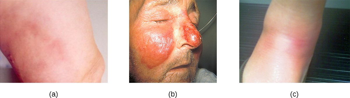 S. pyogenes can cause a variety of skin conditions once it breaches the skin barrier through a cut or wound. (a) Cellulitis presents as a painful, red rash. (b) Erysipelas presents as a raised rash, usually with clear borders. (c) Erythema nodosum is characterized by red lumps or nodules, typically on the lower legs.