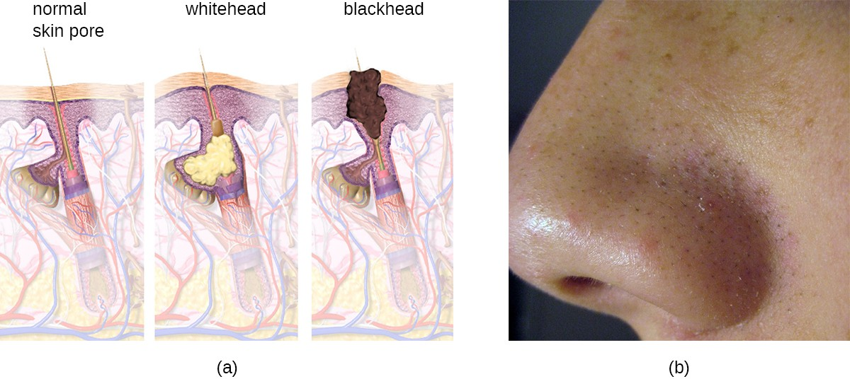 (a) Acne is characterized by whitehead and blackhead comedones that result from clogged hair follicles. (b) Blackheads, visible as black spots on the skin, have a dark appearance due to the oxidation of lipids in sebum via exposure to the air.