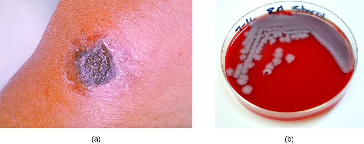 (a) Cutaneous anthrax is an infection of the skin by B. anthracis, which produces tissue-damaging exotoxins. Dead tissues accumulating in this nodule have produced a small black eschar. (b) Colonies of B. anthracis grown on sheep's blood agar.