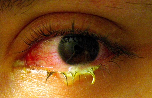 Acute, purulent, bacterial conjunctivitis causes swelling and redness in the conjunctiva, the membrane lining the whites of the eyes and the inner eyelids. It is often accompanied by a yellow, green, or white discharge, which can dry and become encrusted on the eyelashes.