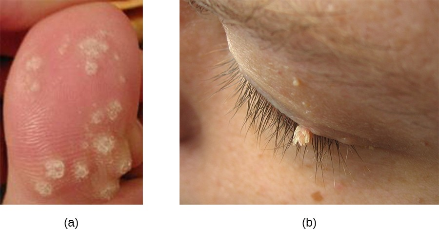 Warts can vary in shape and in location. (a) Multiple plantar warts have grown on this toe. (b) A filiform wart has grown on this eyelid.