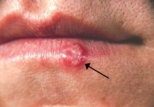 This cold sore was caused by HSV-1.
