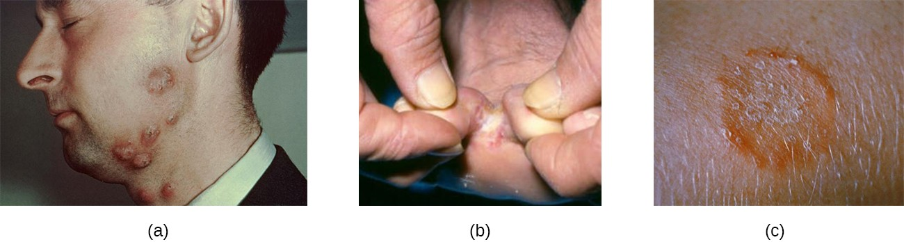 Tineas are superficial cutaneous mycoses and are common. (a) Tinea barbae (barber's itch) occurs on the lower face. (b) Tinea pedis (athlete's foot) occurs on the feet, causing itching, burning, and dry, cracked skin between the toes. (c) A close-up view of tinea corporis (ringworm) caused by Trichophyton mentagrophytes.