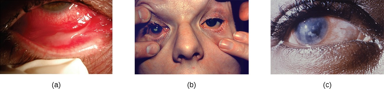 (a) Conjunctivitis is inflammation of the conjunctiva. (b) Blepharitis is inflammation of the eyelids. (c) Keratitis is inflammation of the cornea.