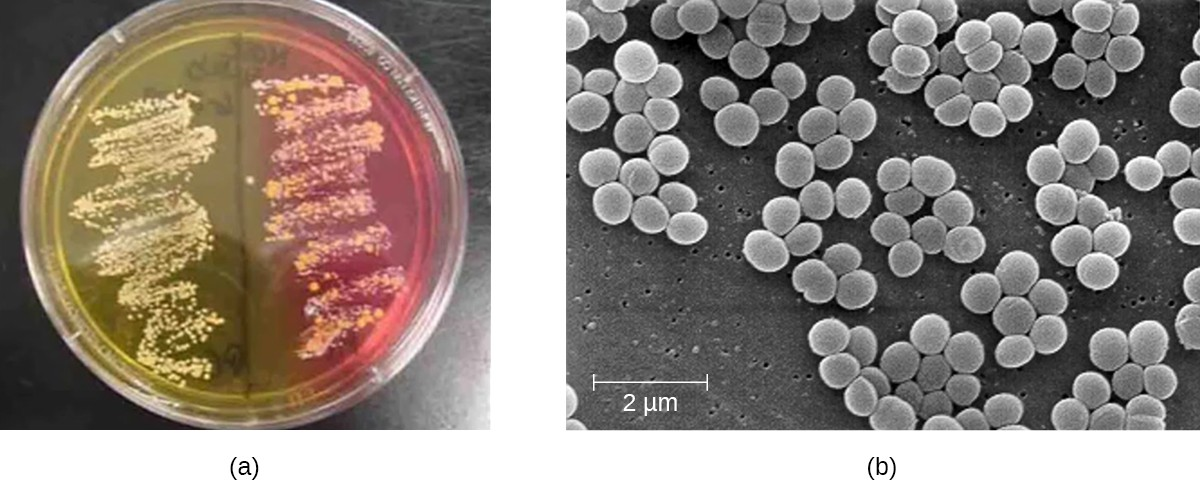 (a) A mannitol salt agar plate is used to distinguish different species of staphylococci. In this plate, S. aureus is on the left and S. epidermidis is in the right. Because S. aureus is capable of fermenting mannitol, it produces acids that cause the color to change to yellow. (b) This scanning electron micrograph shows the characteristic grapelike clusters of S. aureus.