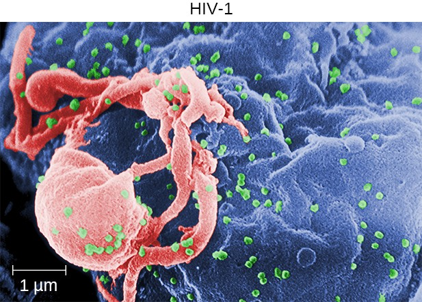 This micrograph shows HIV particles (green) budding from a lymphocyte (top right).
