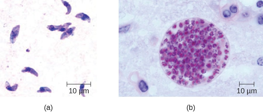 (a) Giemsa-stained Toxoplasma gondii tachyzoites from a smear of peritoneal fluid obtained from a mouse inoculated with T. gondii. Tachyzoites are typically crescent shaped with a prominent, centrally placed nucleus. (b)  Microscopic cyst containing T. gondii from mouse brain tissue. Thousands of resting parasites (stained red) are contained in a thin parasite cyst wall.
