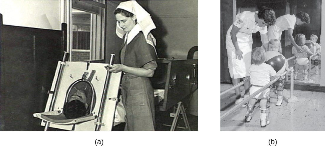 (a) An Emerson respiratory (or iron lung) that was used to help some polio victims to breathe. (b) Polio can also result in impaired motor function.
