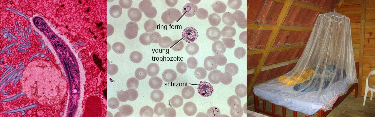 Malaria is a disease caused by a eukaryotic parasite transmitted to humans by mosquitos. Micrographs (left and center) show a sporozoite life stage, trophozoites, and a schizont in a blood smear. On the right is depicted a primary defense against mosquito-borne illnesses like malaria—mosquito netting.