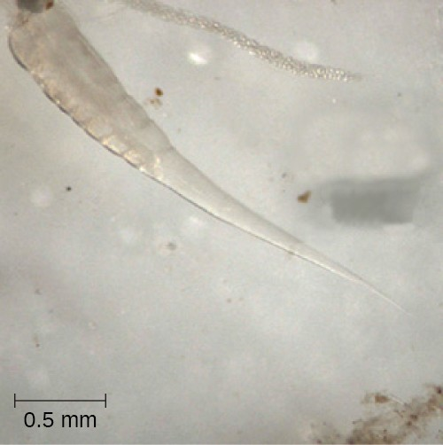 A micrograph of the nematode Enterobius vermicularis, also known as the pinworm.