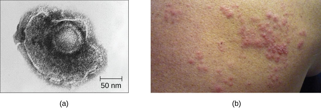 (a) Varicella-zoster, the virus that causes chickenpox, has an enveloped icosahedral capsid visible in this transmission electron micrograph. Its double-stranded DNA genome becomes incorporated in the host DNA. (b) After a period of latency, the virus can reactivate in the form of shingles, usually manifesting as a painful, localized rash on one side of the body.