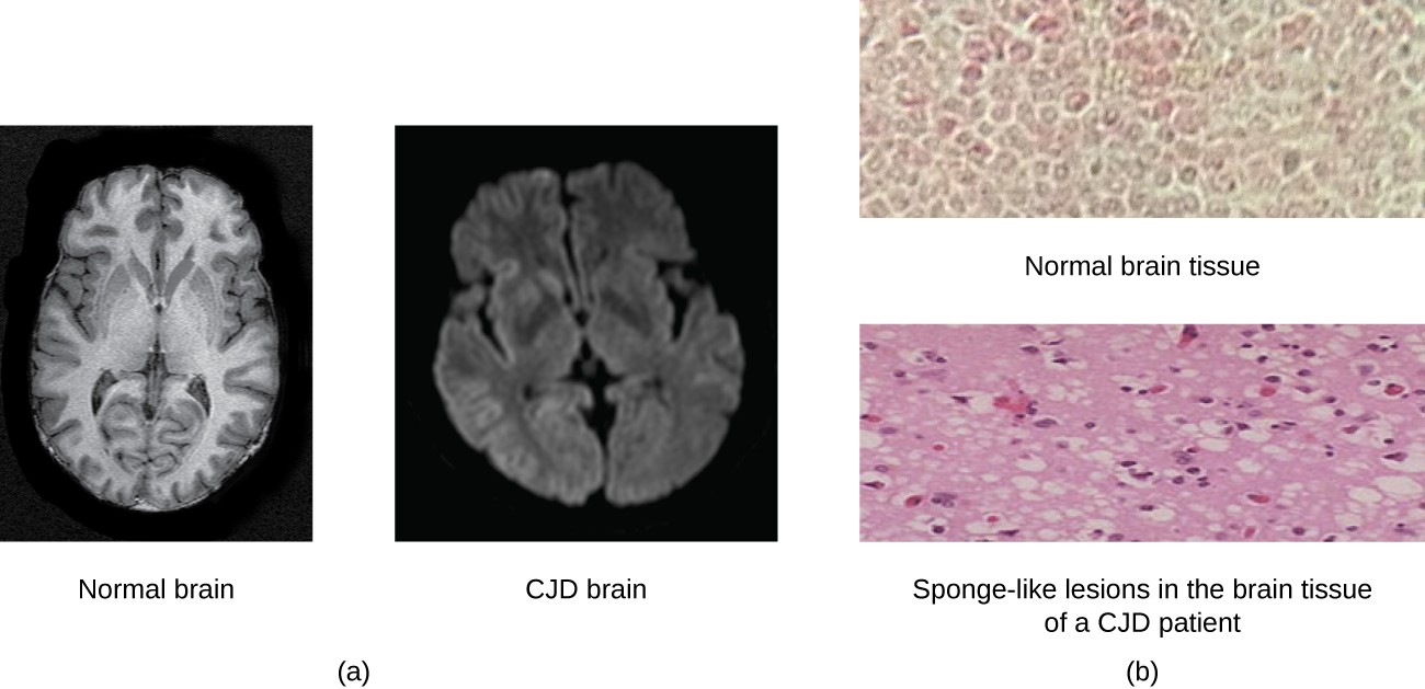 Creutzfeldt-Jakob disease (CJD) is a fatal disease that causes degeneration of neural tissue. (a) These brain scans compare a normal brain to one with CJD. (b) Compared to a normal brain, the brain tissue of a CJD patient is full of sponge-like lesions, which result from abnormal formations of prion protein.