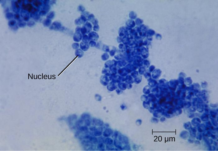 Candida albicans is a unicellular fungus, or yeast. It is the causative agent of vaginal yeast infections as well as oral thrush, a yeast infection of the mouth that commonly afflicts infants. C. albicans has a morphology similar to that of coccus bacteria; however, yeast is a eukaryotic organism (note the nuclei) and is much larger.