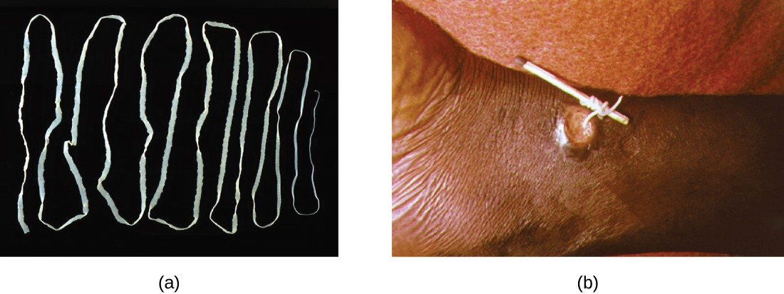 (a) The beef tapeworm, Taenia saginata, infects both cattle and humans. T. saginata eggs are microscopic (around 50 µm), but adult worms like the one shown here can reach 4–10 m, taking up residence in the digestive system. (b) An adult guinea worm, Dracunculus medinensis, is removed through a lesion in the patient's skin by winding it around a matchstick.