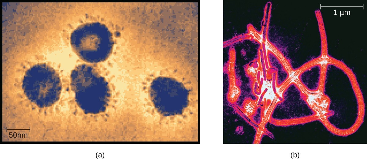 (a) Members of the Coronavirus family can cause respiratory infections like the common cold, severe acute respiratory syndrome (SARS), and Middle East respiratory syndrome (MERS). Here they are viewed under a transmission electron microscope (TEM). (b) Ebolavirus, a member of the Filovirus family, as visualized using a TEM.