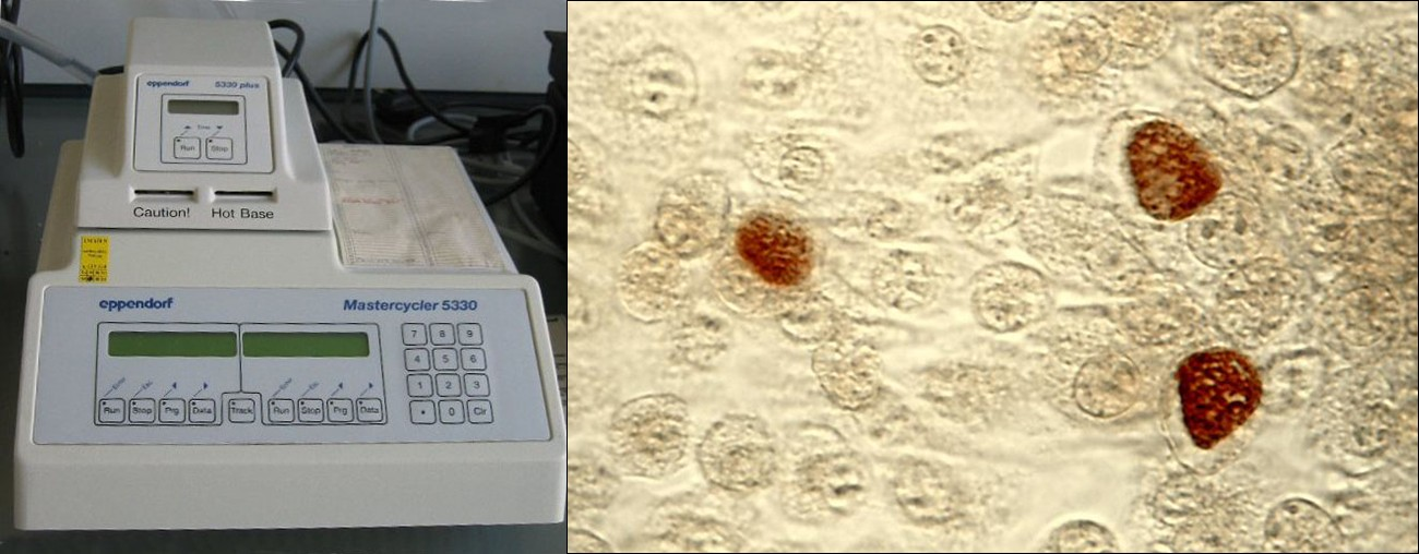 A thermal cycler (left) is used during a polymerase chain reaction (PCR). PCR amplifies the number of copies of DNA and can assist in diagnosis of infections caused by microbes that are difficult to culture, such as Chlamydia trachomatis (right). C. trachomatis causes chlamydia, the most common sexually transmitted disease in the United States, and trachoma, the world's leading cause of preventable blindness.
