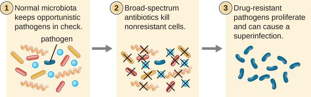 Broad-spectrum antimicrobial use may lead to the development of a superinfection.