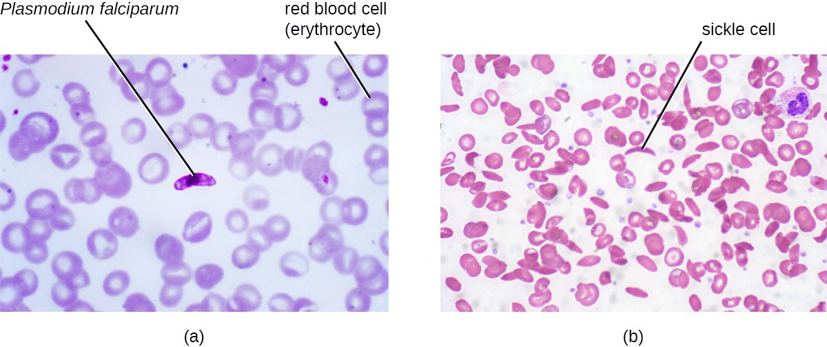 Blood smears showing two diseases of the blood. (a) Malaria is an infectious, zoonotic disease caused by the protozoan pathogen Plasmodium falciparum (shown here) and several other species of the genus Plasmodium. It is transmitted by mosquitoes to humans. (b) Sickle cell disease is a noninfectious genetic disorder that results in abnormally shaped red blood cells, which can stick together and obstruct the flow of blood through the circulatory system. It is not caused by a pathogen, but rather a genetic mutation.