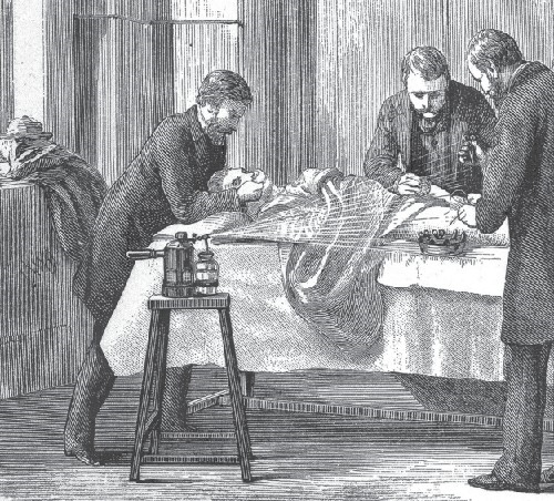 Joseph Lister initiated the use of a carbolic acid (phenol) during surgeries. This illustration of a surgery shows a pressurized canister of carbolic acid being sprayed over the surgical site.