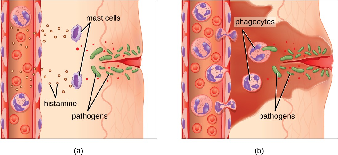 (a) Mast cells detect injury to nearby cells and release histamine, initiating an inflammatory response. (b)  Histamine increases blood flow to the wound site, and increased vascular permeability allows fluid, proteins, phagocytes, and other immune cells to enter infected tissue. These events result in the swelling and reddening of the injured site, and the increased blood flow to the injured site causes it to feel warm. Inflammation is also associated with pain due to these events stimulating nerve pain receptors in the tissue. The interaction of phagocyte PRRs with cellular distress signals and PAMPs and opsonins on the surface of pathogens leads to the release of more proinflammatory chemicals, enhancing the inflammatory response.