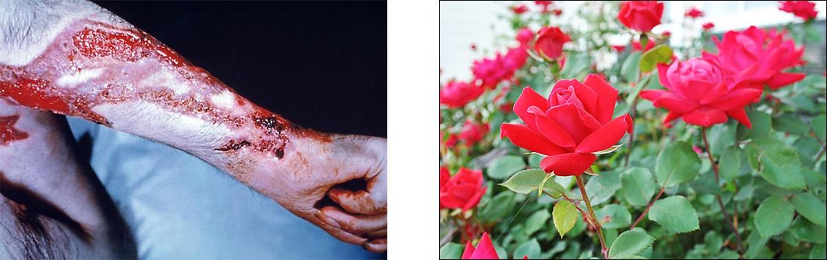 Rose gardener's disease can occur when the fungus Sporothrix schenkii breaches the skin through small cuts, such as might be inflicted by thorns.