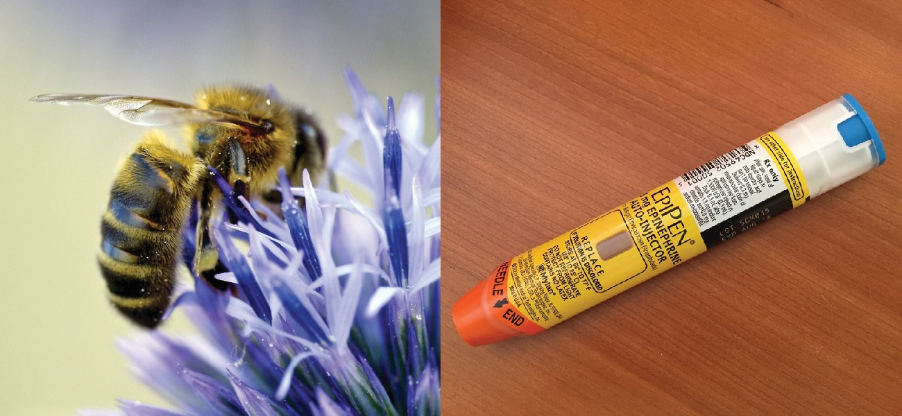 Bee stings and other allergens can cause life-threatening, systemic allergic reactions. Sensitive individuals may need to carry an epinephrine auto-injector (e.g., EpiPen) in case of a sting. A bee-sting allergy is an example of an immune response that is harmful to the host rather than protective; epinephrine counteracts the severe drop in blood pressure that can result from the immune response.