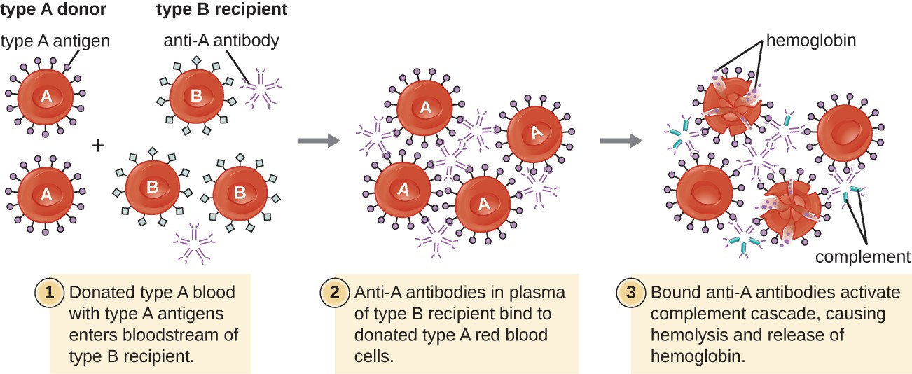 A type II hypersensitivity hemolytic transfusion reaction (HTR) leading to hemolytic anemia. Blood from a type A donor is administered to a patient with type B blood. The anti-A isohemagglutinin IgM antibodies in the recipient bind to and agglutinate the incoming donor type A red blood cells. The bound anti-A antibodies activate the classical complement cascade, resulting in destruction of the donor red blood cells.