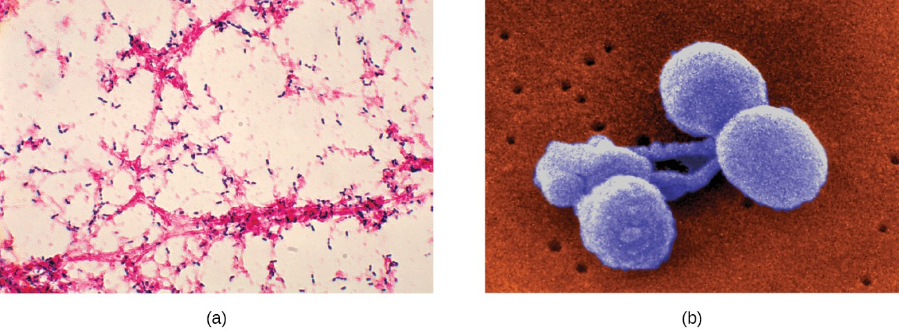 (a) This micrograph of Streptococcus pneumoniae grown from a blood culture shows the characteristic lancet-shaped diplococcal morphology. (b) A colorized scanning electron micrograph of S. pneumoniae.