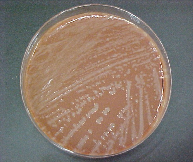 Culture of Haemophilus influenzae on a chocolate agar plate.