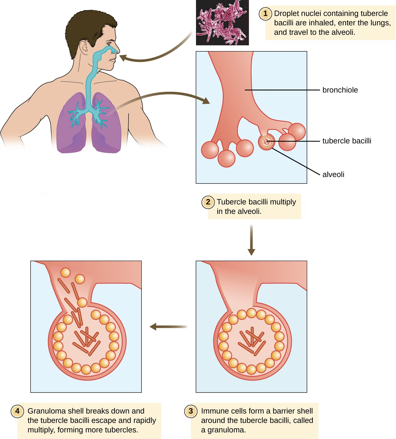 "In the infectious cycle of tuberculosis, the immune response of most infected individuals (approximately 90%) results in the formation of tubercles in which the infection is walled off.<a class=""footnote"" title=""G. Kaplan et al. ""Mycobacterium tuberculosis Growth at the Cavity Surface: A Microenvironment with Failed Immunity."" Infection and Immunity 71 no.12 (2003):7099–7108."" id=""return-footnote-410-1"" href=""#footnote-410-1"" aria-label=""Footnote 1""><sup class=""footnote"">[1]</sup></a> The remainder will suffer progressive primary tuberculosis. The sequestered bacteria may be reactivated to form secondary tuberculosis in immunocompromised patients at a later time."