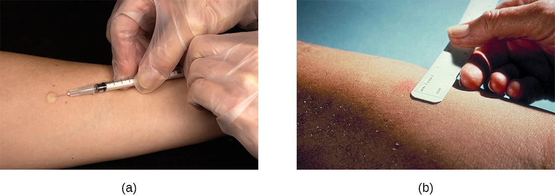 (a) The Mantoux skin test for tuberculosis involves injecting the subject with tuberculin protein derivative. The injection should initially produce a raised wheal. (b) The test should be read in 48–72 hours. A positive result is indicated by redness, swelling, or hardness; the size of the responding region is measured to determine the final result.