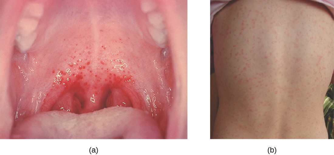 Streptococcal infections of the respiratory tract may cause localized pharyngitis or systemic signs and symptoms. (a) The characteristic appearance of strep throat: bright red arches of inflammation with the presence of dark-red spots (petechiae). (b) Scarlet fever presents as a rash on the skin.