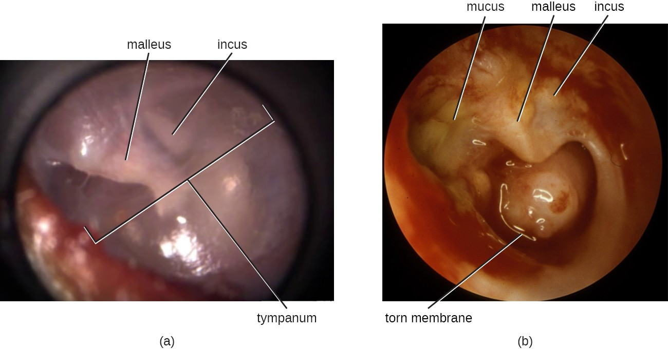 (a) A healthy tympanic membrane; the middle ear bones can be seen behind the membrane. (b) An ear with chronic inflammation that has resulted in a torn membrane, erosion of the inner ear bones, and mucus buildup.