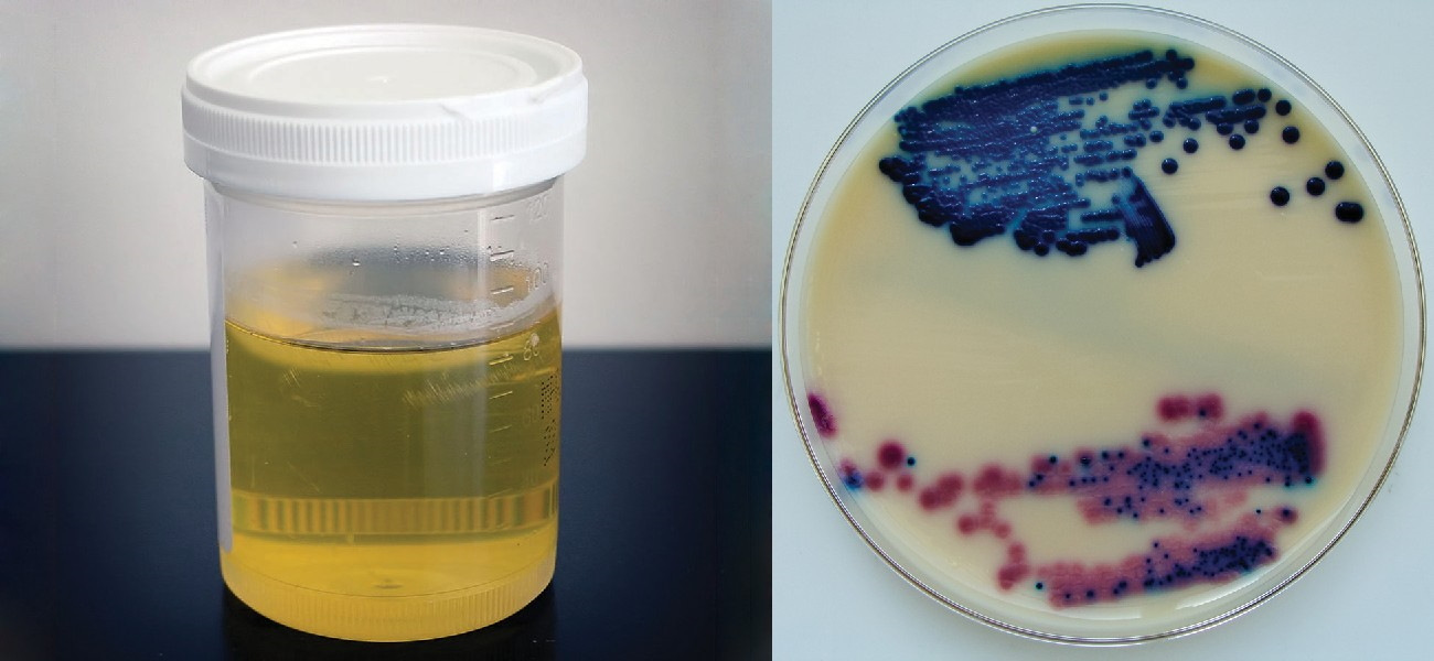 Many pathogens that cause infections of the urogenital system can be detected in urine samples (left). The top sample in the culture (right) was prepared from the urine of a patient with a urinary tract infection.