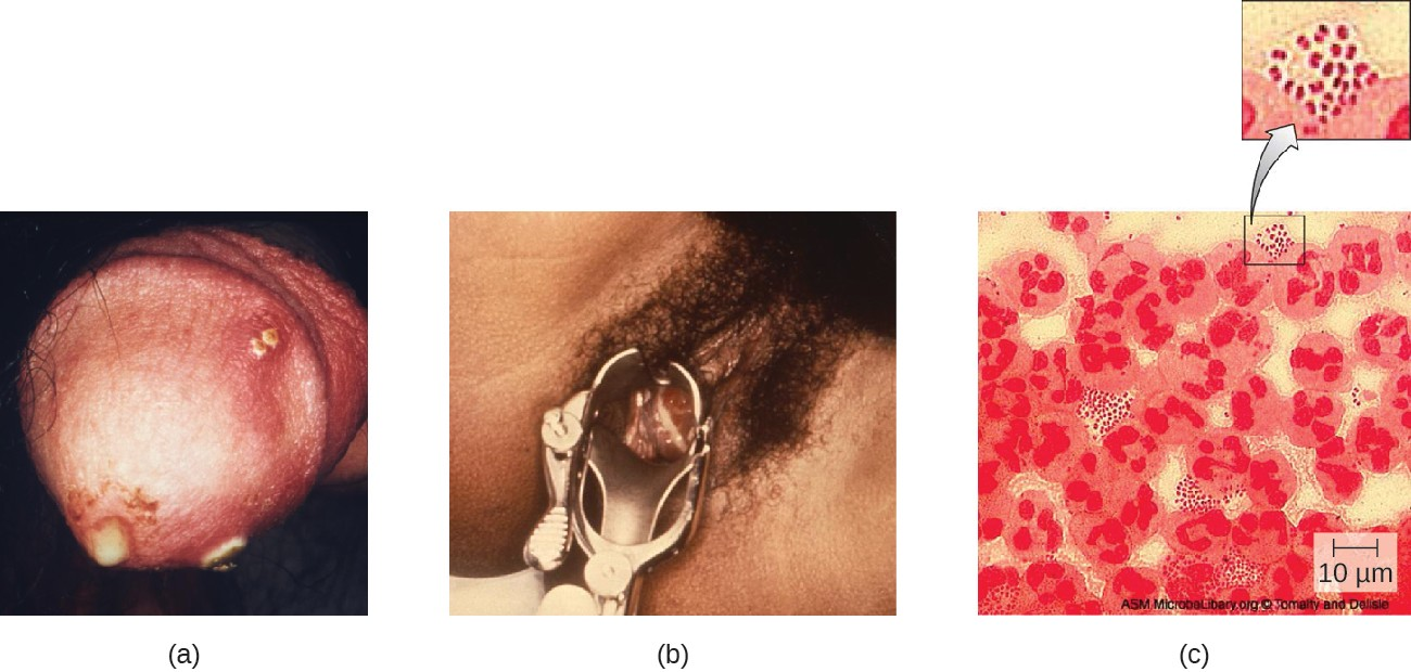 (a) Clinical photograph of gonococcal discharge from penis. The lesions on the skin could indicate co- infection with another STI. (b) Purulent discharge originating from the cervix and accumulating in the vagina of a patient with gonorrhea. (c) A micrograph of urethral discharge shows gram-negative diplococci (paired cells) both inside and outside the leukocytes (large cells with lobed nuclei). These results could be used to diagnose gonorrhea in a male patient, but female vaginal samples may contain other Neisseria spp. even if the patient is not infected with N. gonorrhoeae.