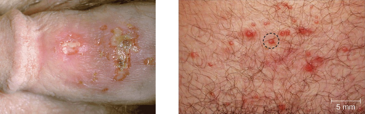 Genital herpes is typically characterized by lesions on the genitals (left), but lesions can also appear elsewhere on the skin or mucous membranes (right). The lesions can be large and painful or small and easily overlooked.