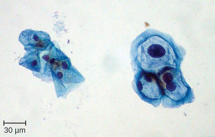 In this image, the cervical cells on the left are normal and those on the right show enlarged nuclei and hyperchromasia (darkly stained nuclei) typical of HPV-infected koilocytes.