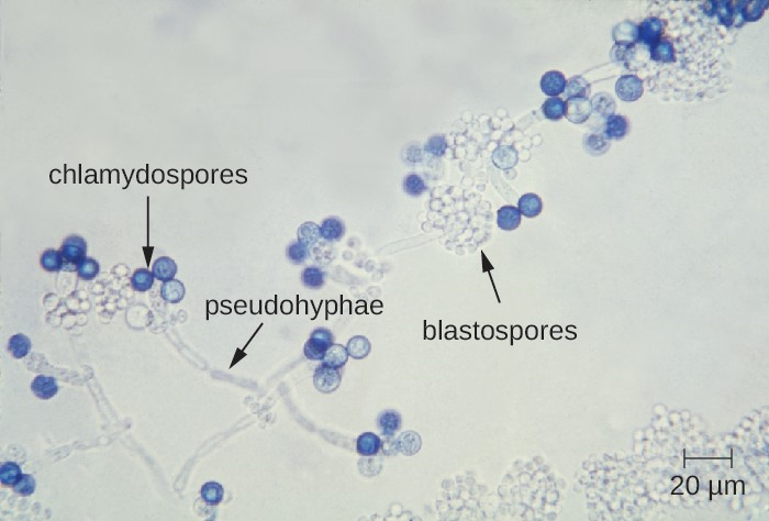 Candida blastospores (asexual spores that result from budding) and chlamydospores (resting spores produced through asexual reproduction) are visible in this micrograph.