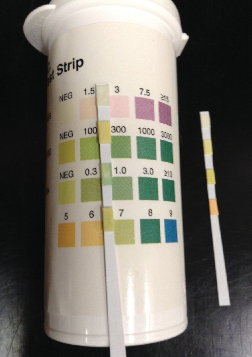 A urine dipstick is compared against a color key to determine levels of various chemicals, proteins, or cells in the urine. Abnormal levels may indicate an infection.